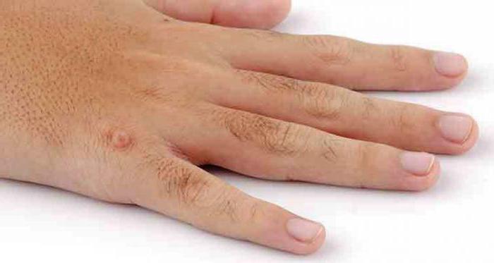 Как избавиться от бородавки в домашних условиях быстро на пальцах