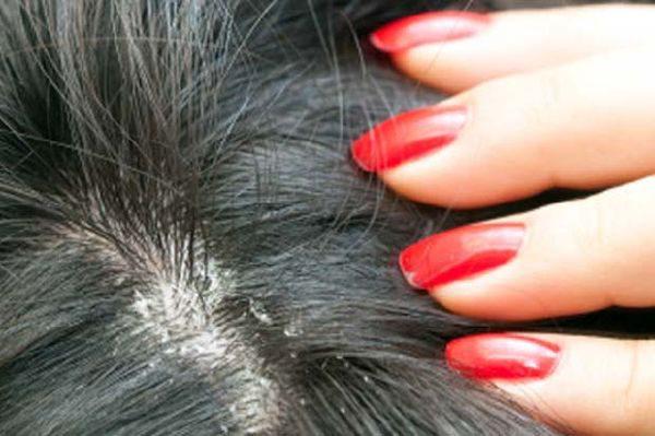 Бородавка на голове в волосах