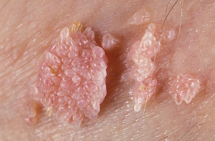 Кандилома вирус фото чем лечить
