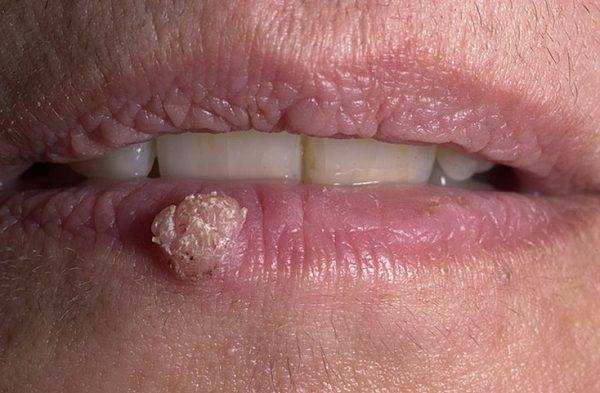 Бородавка на губе
