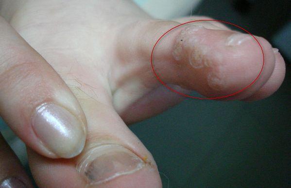 Бородавка на пальце ноги. Как избавиться?
