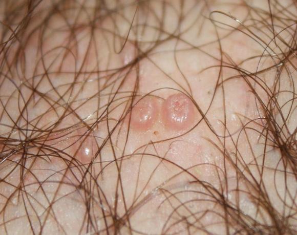 Бородавки на лобке