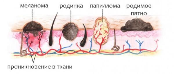 Чем отличается бородавка от папилломы