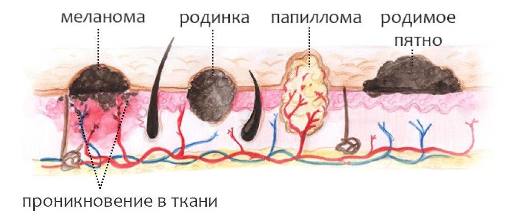 Проявления ВПЧ
