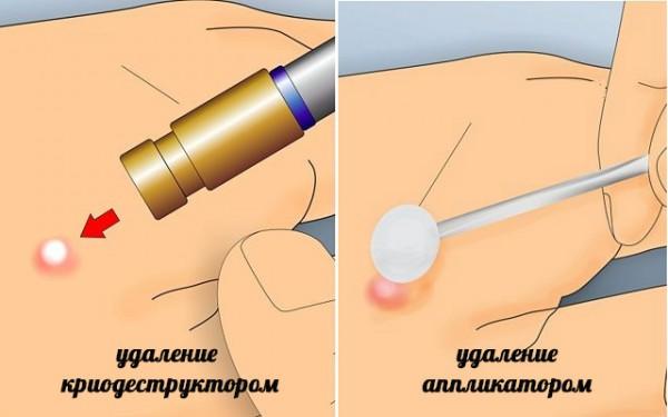 Как проходит удаление новообразований жидким азотом(криодеструкция)