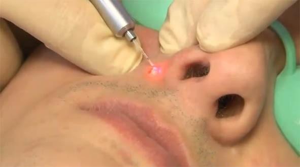Как удалить бородавку на лице