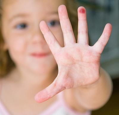 Бородавка у ребенка на пальце