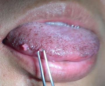 Острые бородавки на боку языка