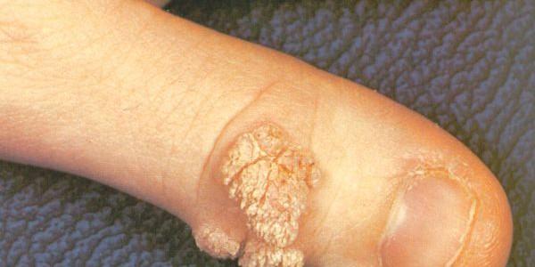 Бродавки на пальцах рук