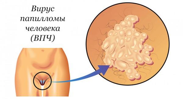 Остроконечные кондиломы у женщин