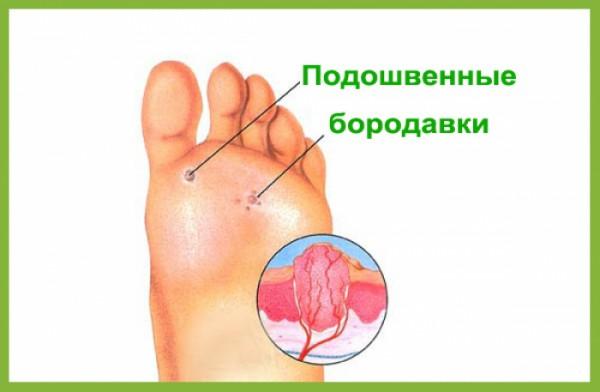 Средство от бородавок на ногах