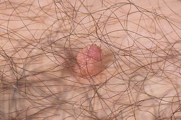 Бородавки в паху у мужчин