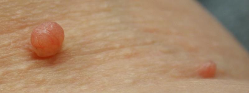 Электрокоагуляция бородавок