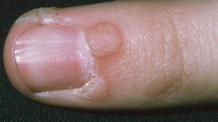 Бородавка под ногтем