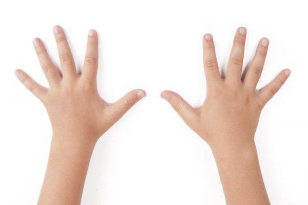 Плоские бородавки на руках.Лечение
